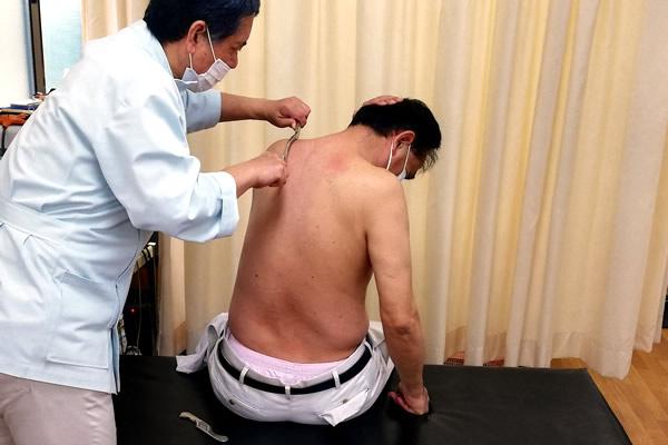 筋膜リリース施術